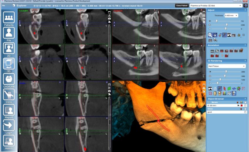 csm_3DMid-Surgical_case_2db7531929